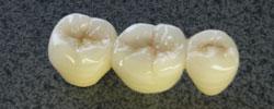 歯科技工製品 保険外・自費