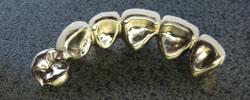歯科技工製品 保険適応