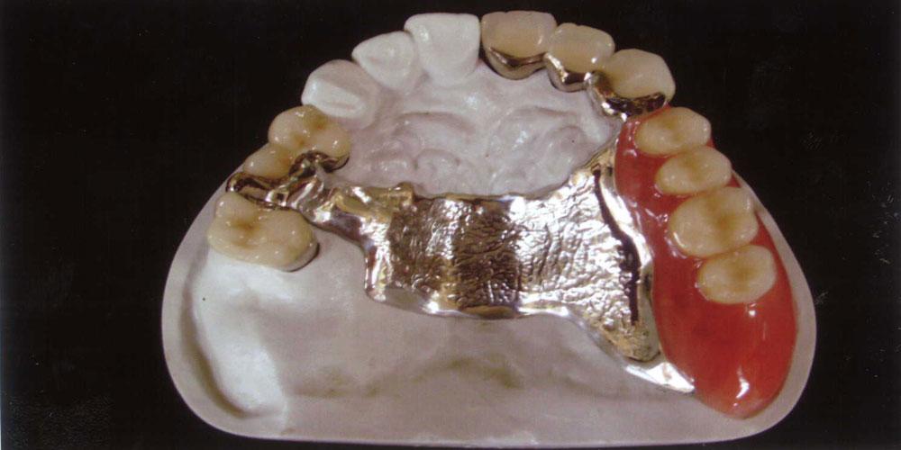 モリノ歯科の得意分野